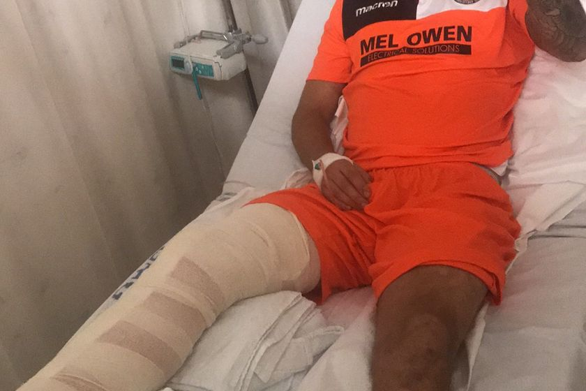 Weekend Injury to Legendary Captain Tom Smith