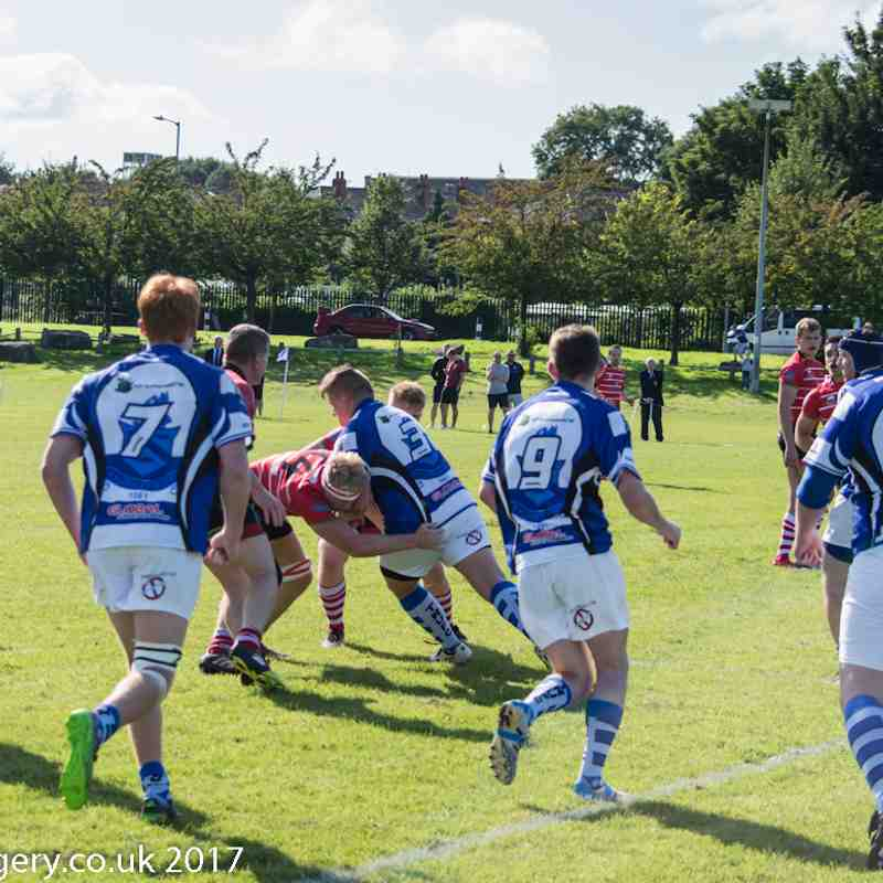 1st XV Vs Tyldesley (Cup)