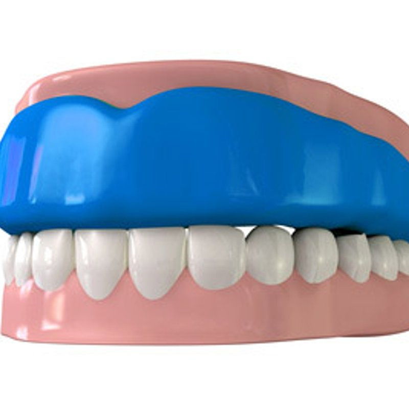 Dentist Visit for Mouth guards