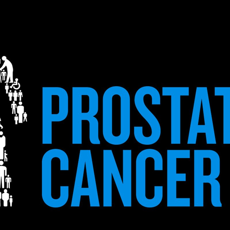 Prostate Cancer Awareness Day at the Shirebrook Game