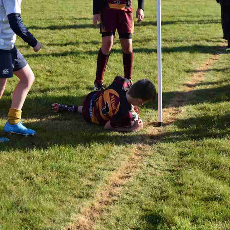 161106 Weekend Review for Ellon Rugby